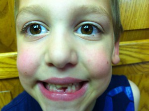 Jesse 2nd tooth(resize)